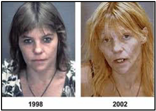 The same person four years after beginning heroin